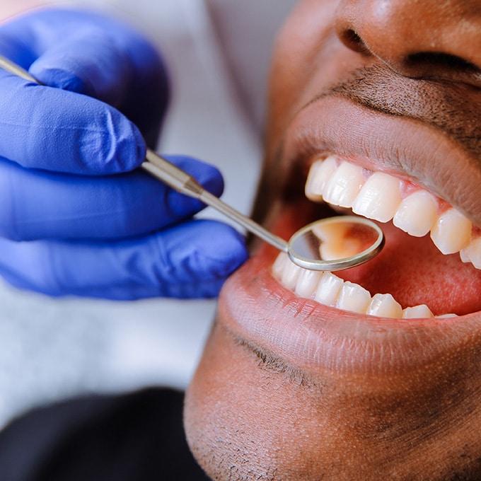 Dental Implant Specialist Near Me